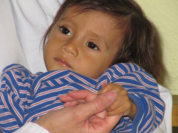 Volunteering in Guatemala - Alberto, one of the many malnourished infants
