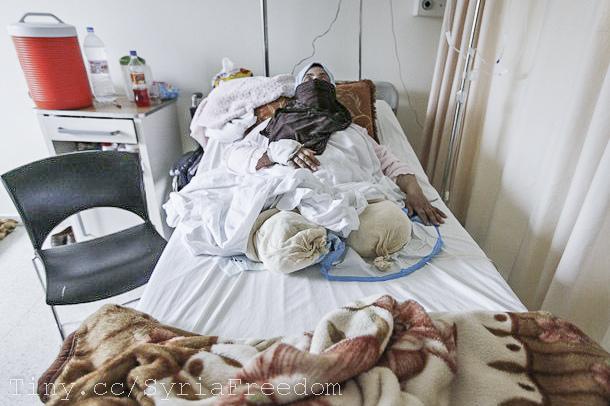 injured woman syria