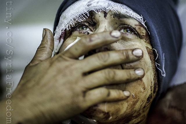 injured syrian woman
